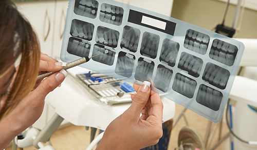 Dental X-Ray Check Ups: What They Are and How Often Do You Need Them