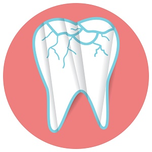 home treatment for broken tooth